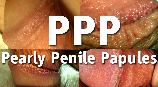 Is There A Cure For Pearly Penile Papules