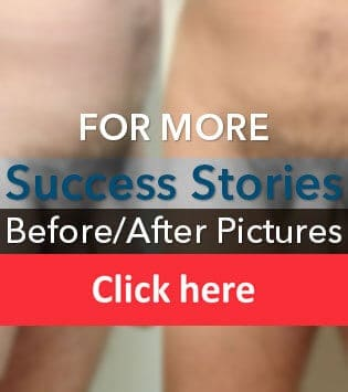 SizeGenetics Success Stories